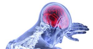 CBD per cura epilessia